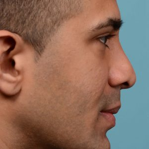 Male nose reduction surgery
