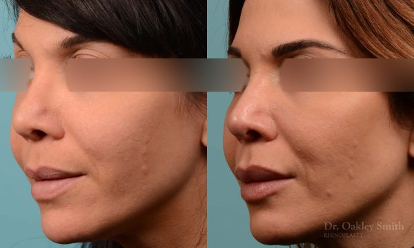 Female rhinoplasty to reduce the curvature on her nose