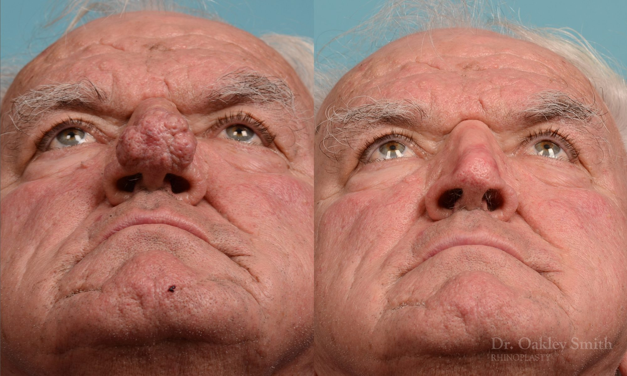 Rhinophyma Surgeon Toronto Dr Oakley Smith