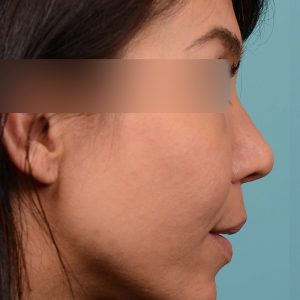 Rhinoplasty narrowed nose