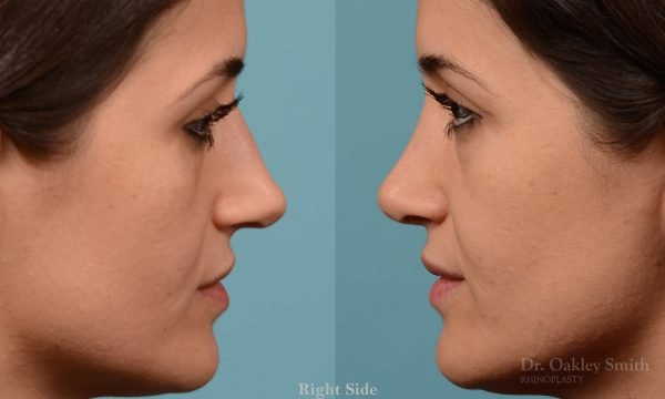 Rhinoplasty curved nose