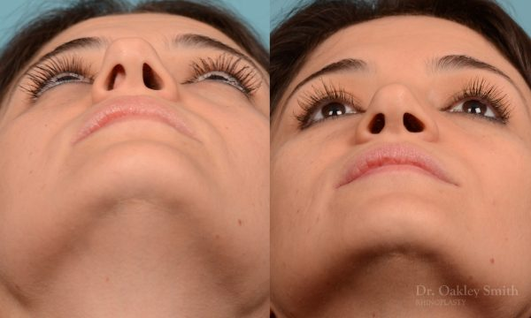 Rhinoplasty curved nose