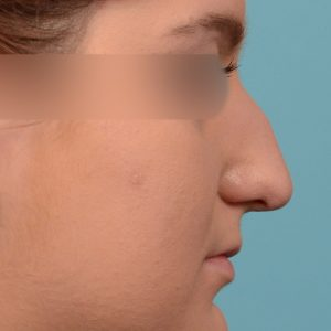 Rhinoplasty - Rhinoplasty Before and After Case 235