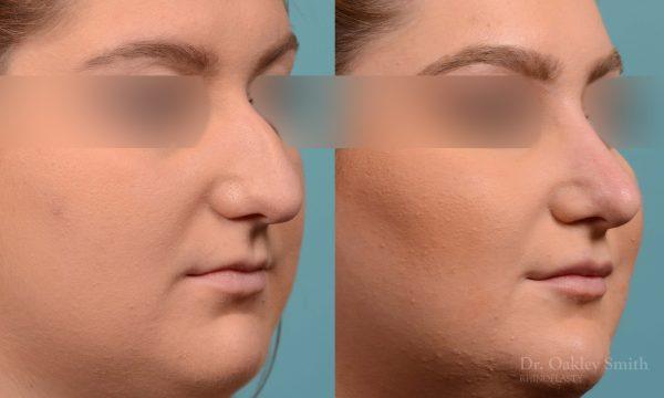 Curved nose rhinoplasty