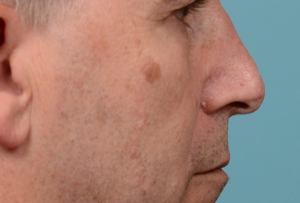 Scar Removal Before and After Case 240