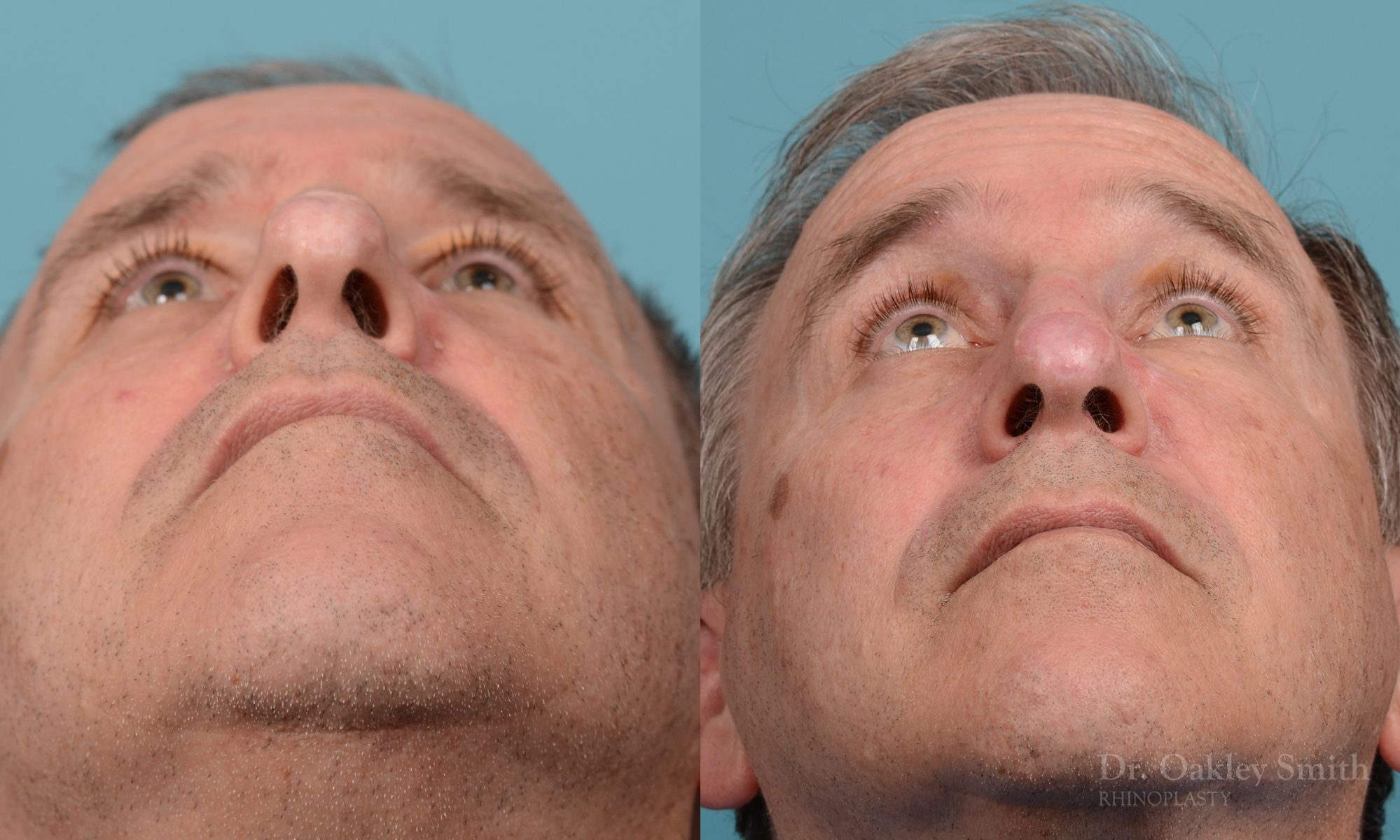 scar removal from previous surgery