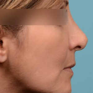 Septoplasty Rhinoplasty to fix breathing and a curved nose