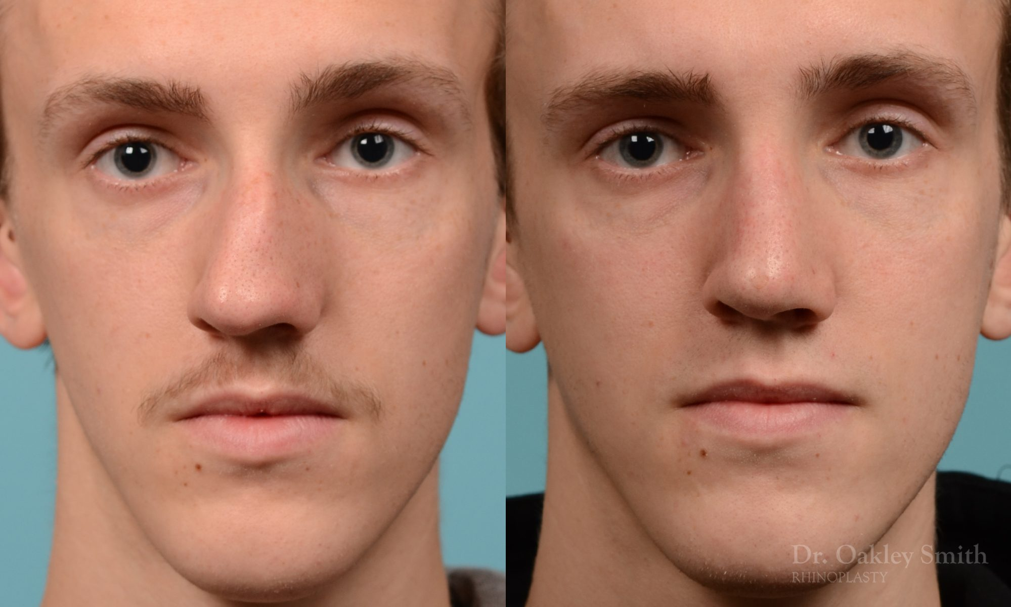 Male rhinoplasty for a curved nose