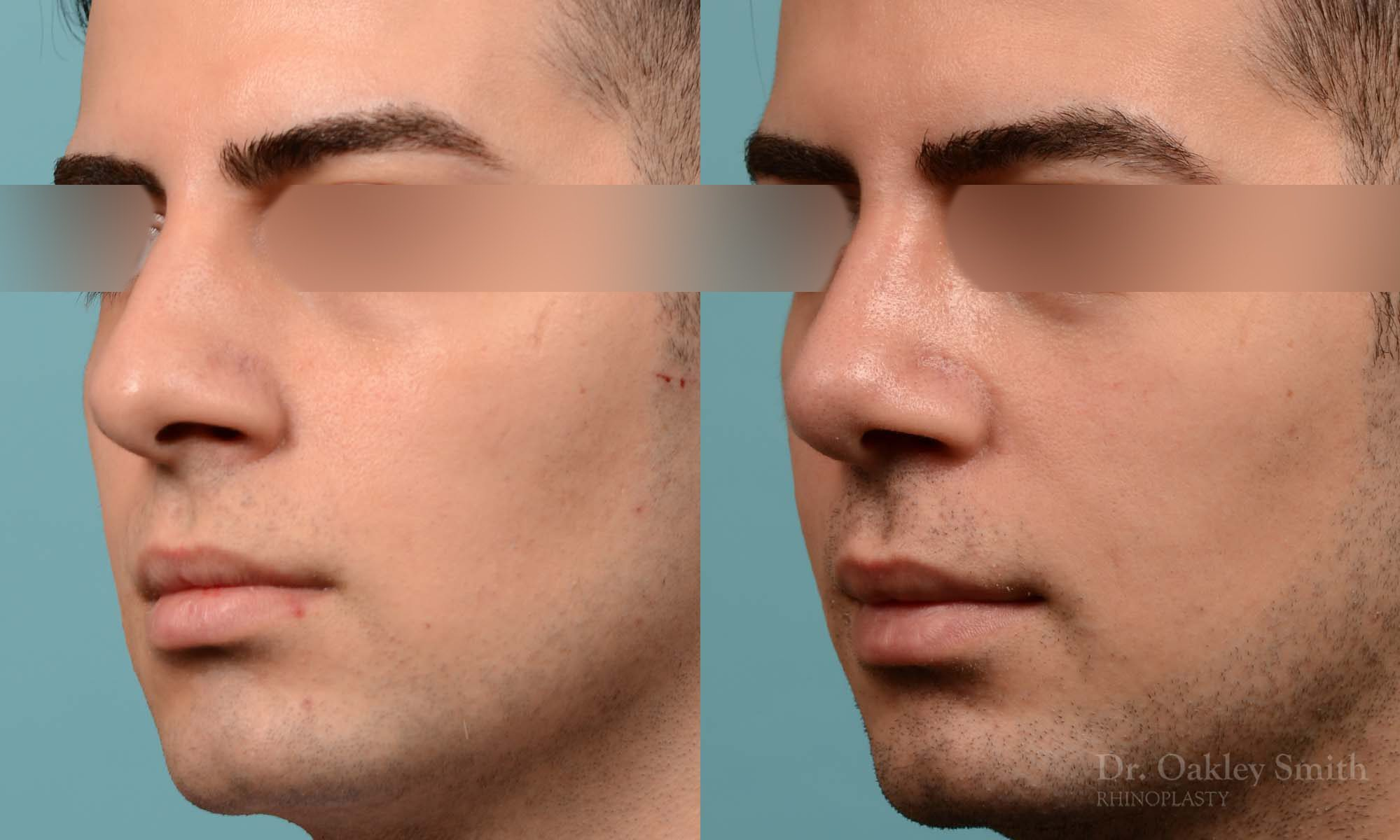 male rhinoplasty deviated septum