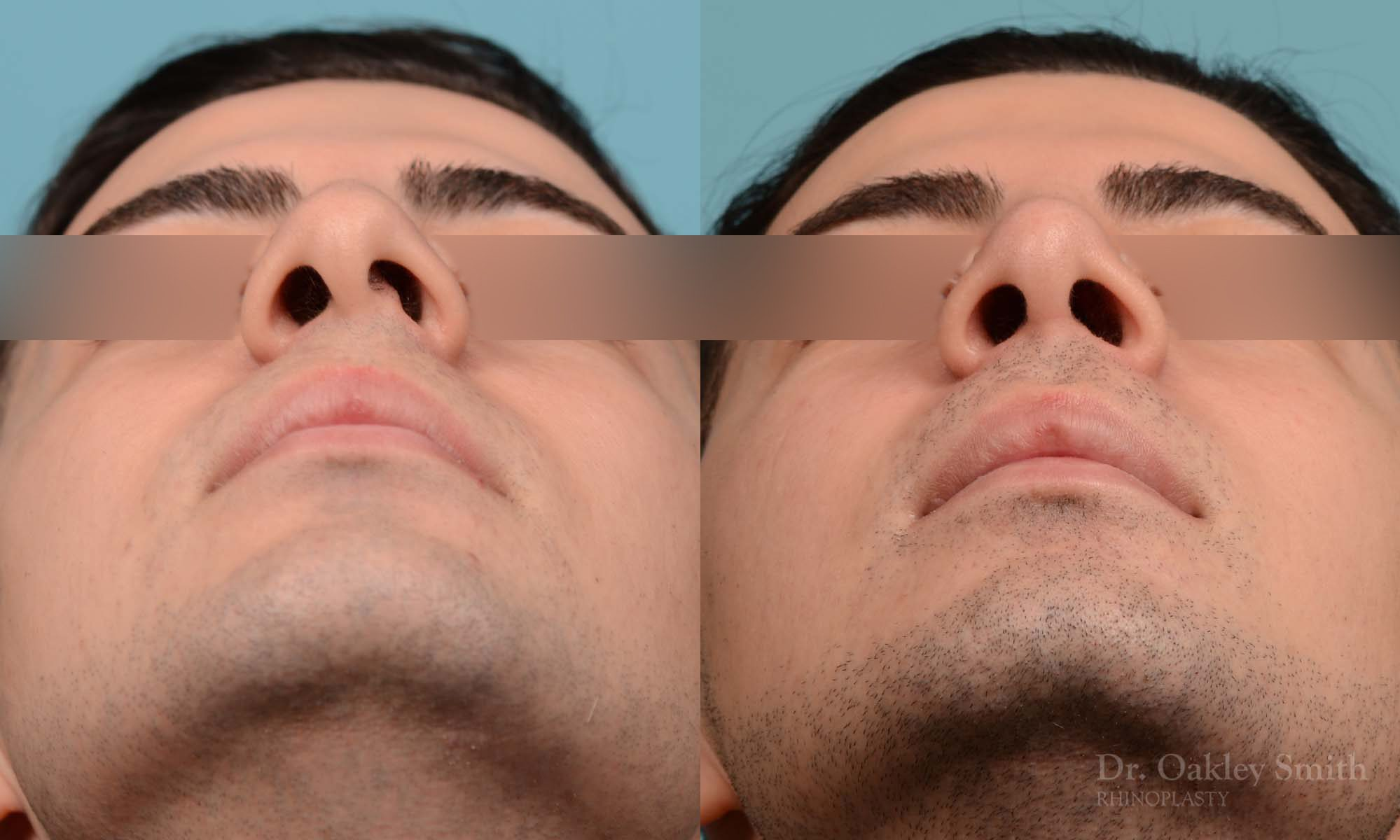 male rhinoplasty deviated septum