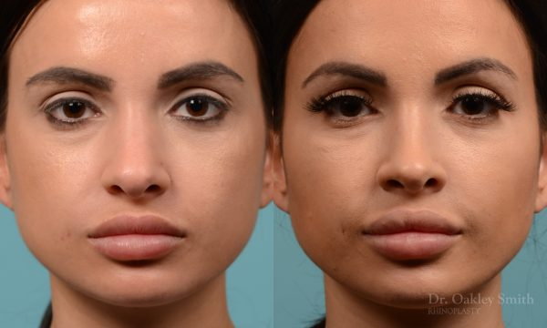 Female nose reduction rhinoplasty