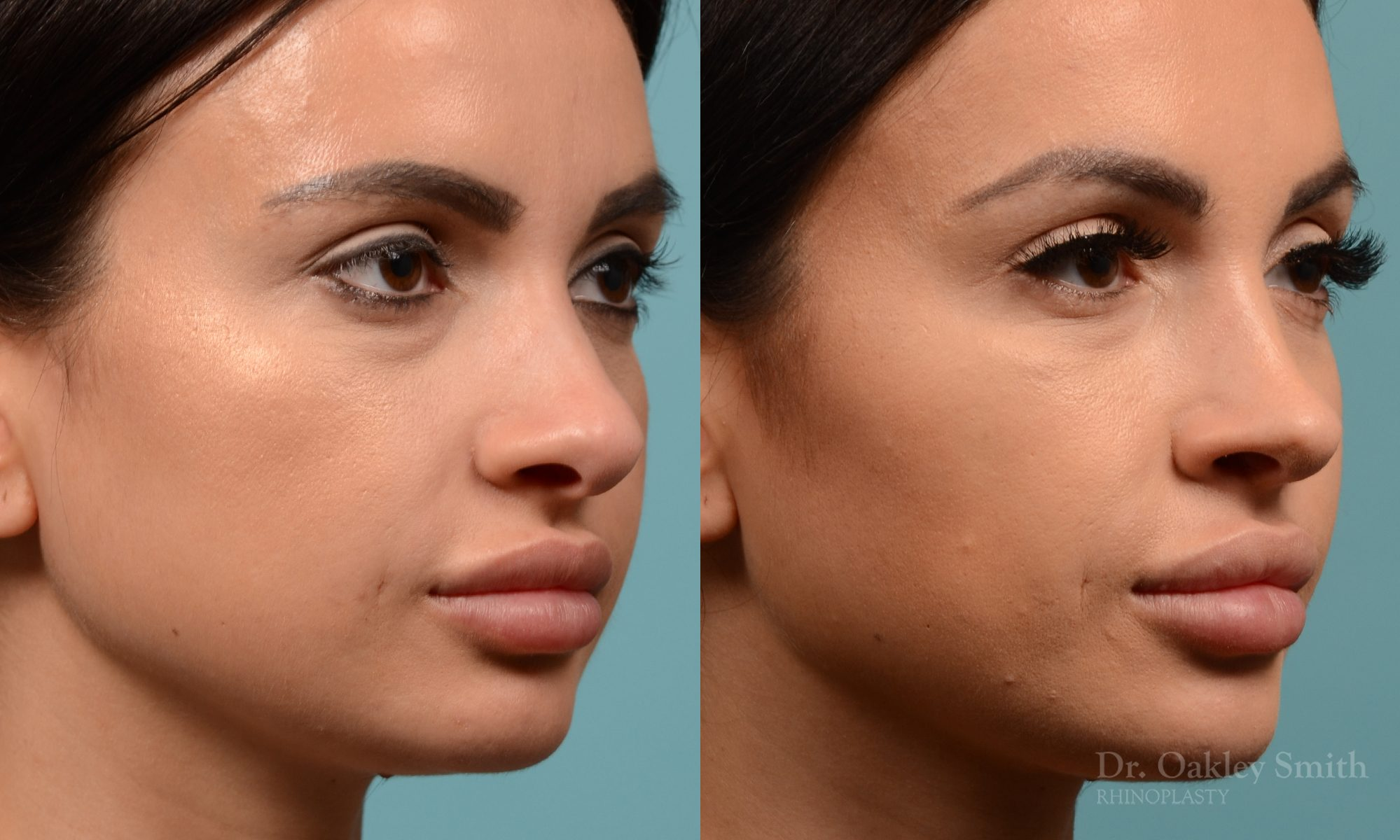 Female nose reduction rhinoplasty