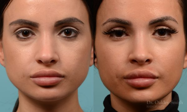 rhinoplasty narrowed bridge