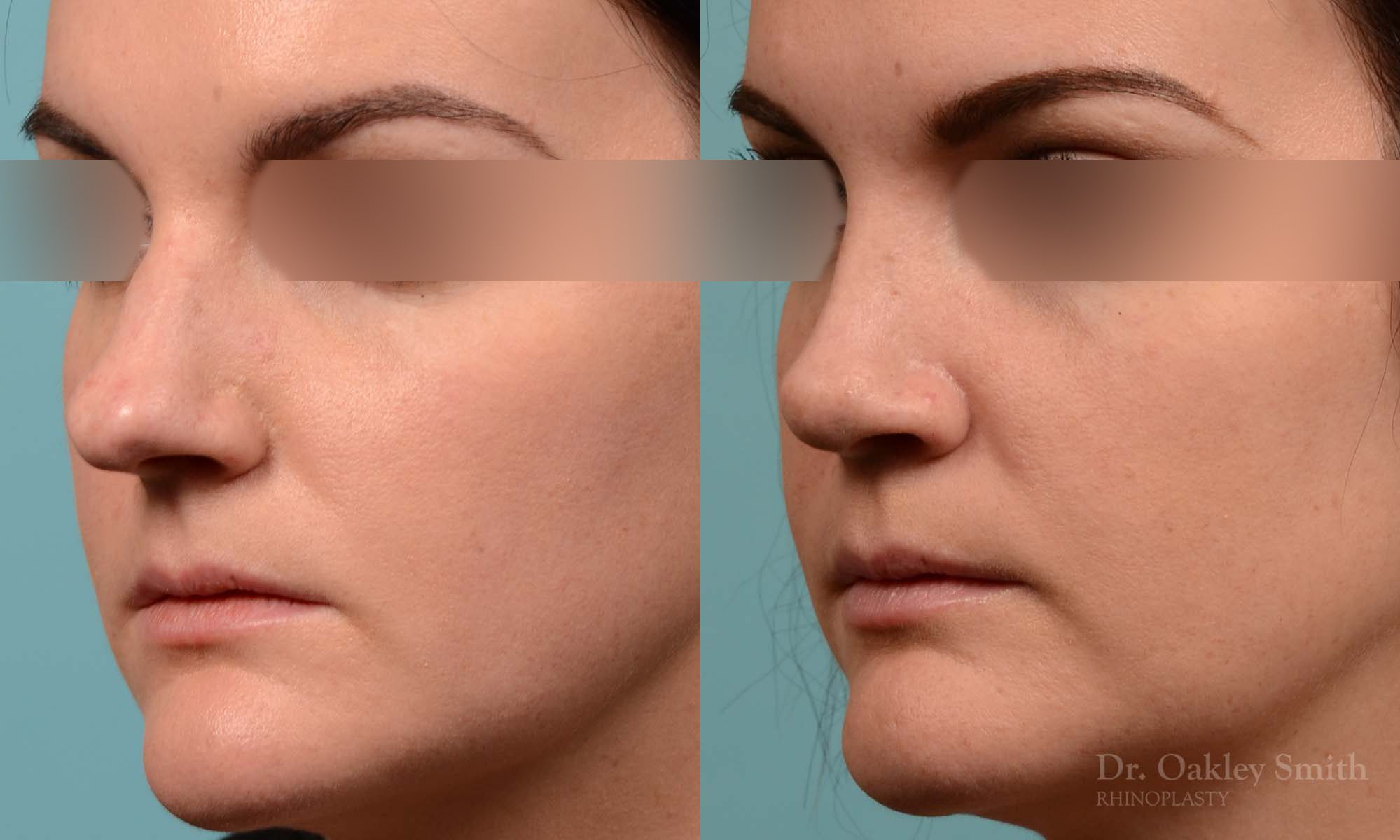 Hump Reduction, Rhinoplasty - Rhinoplasty Before and After Case 252