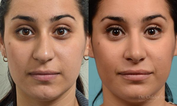 Rhinoplasty hump reduction