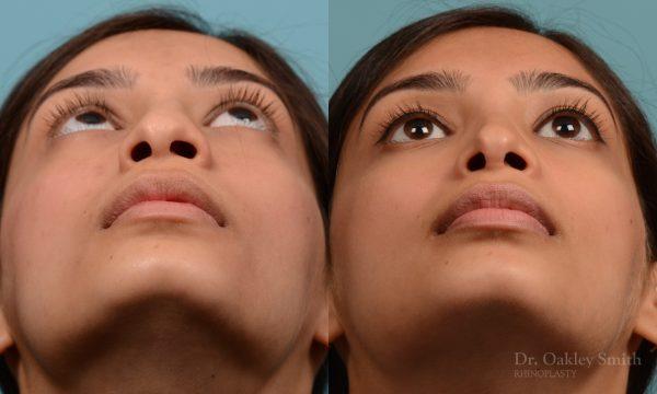 hump reductioon rhinoplasty surgery