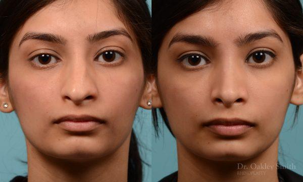 rhinoplasty hump reduction