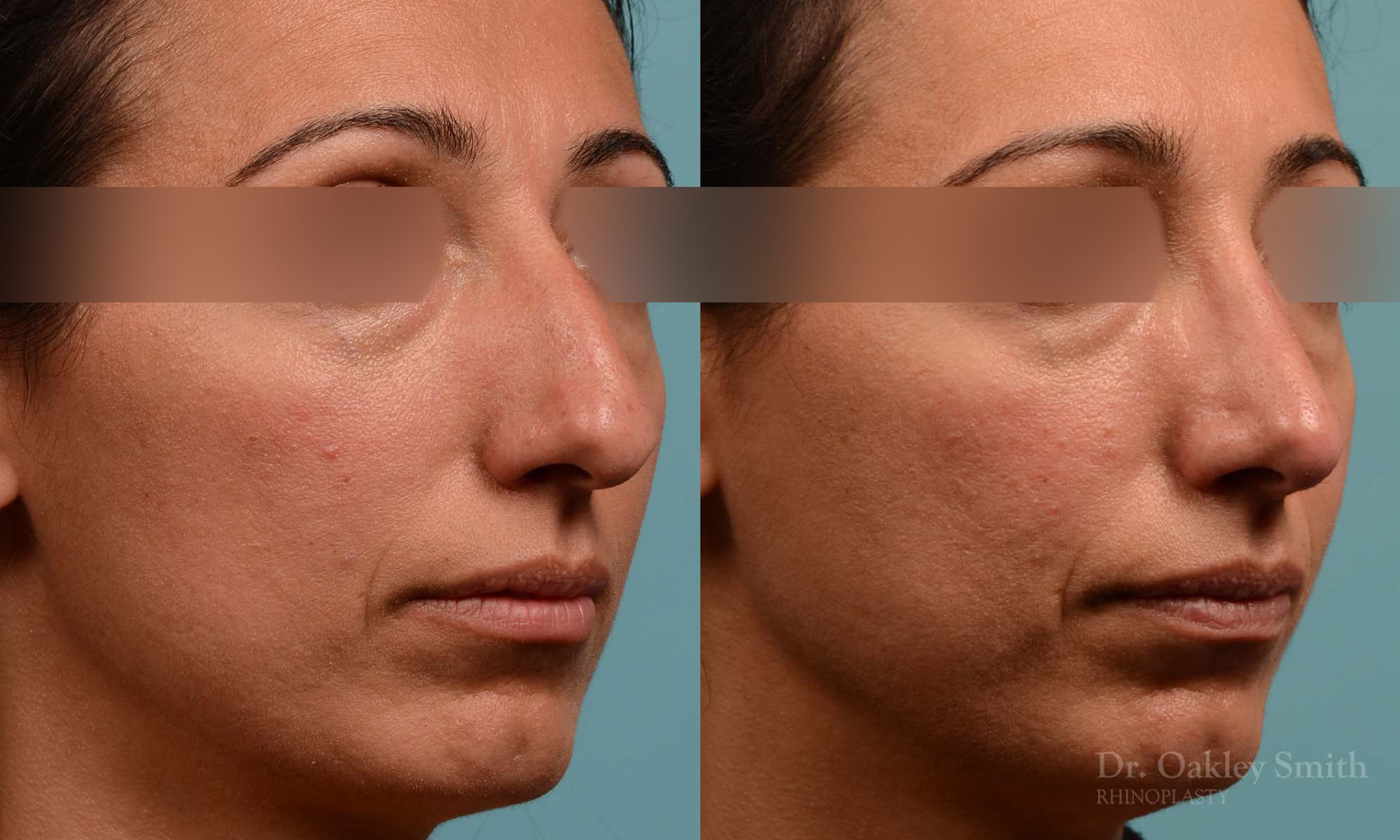 hump reduction rhinoplasty