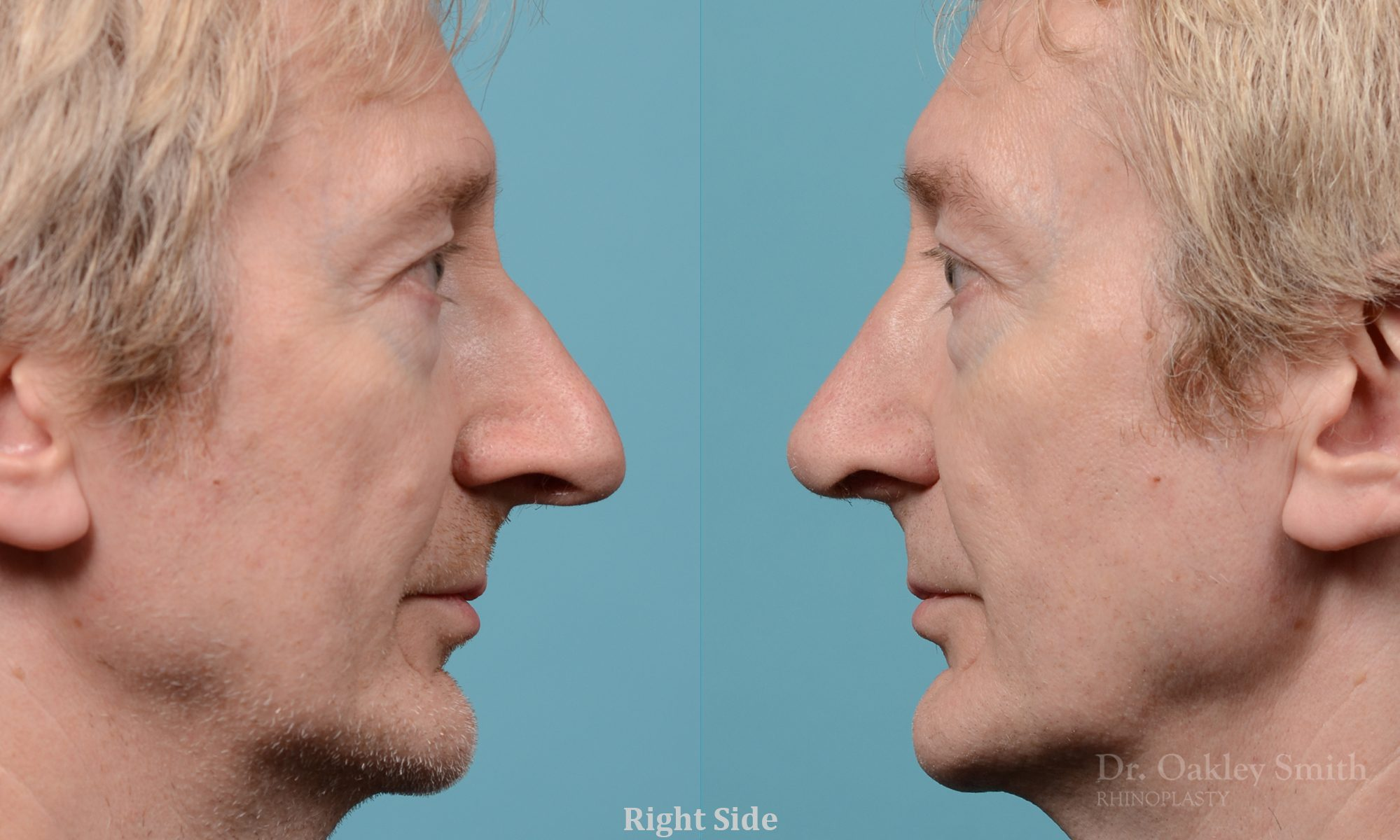 Male rhinoplasty hump redution
