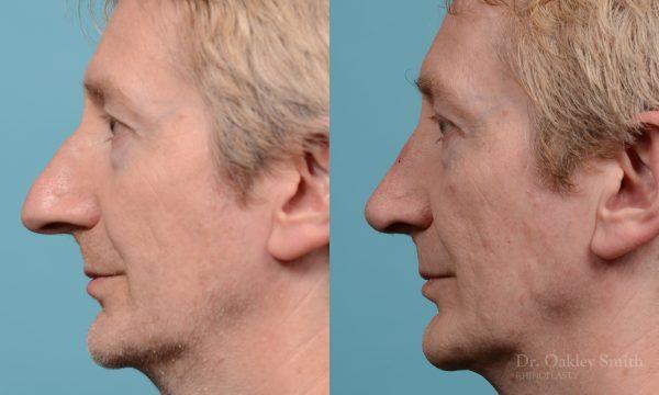 Male rhinoplasty hump redution