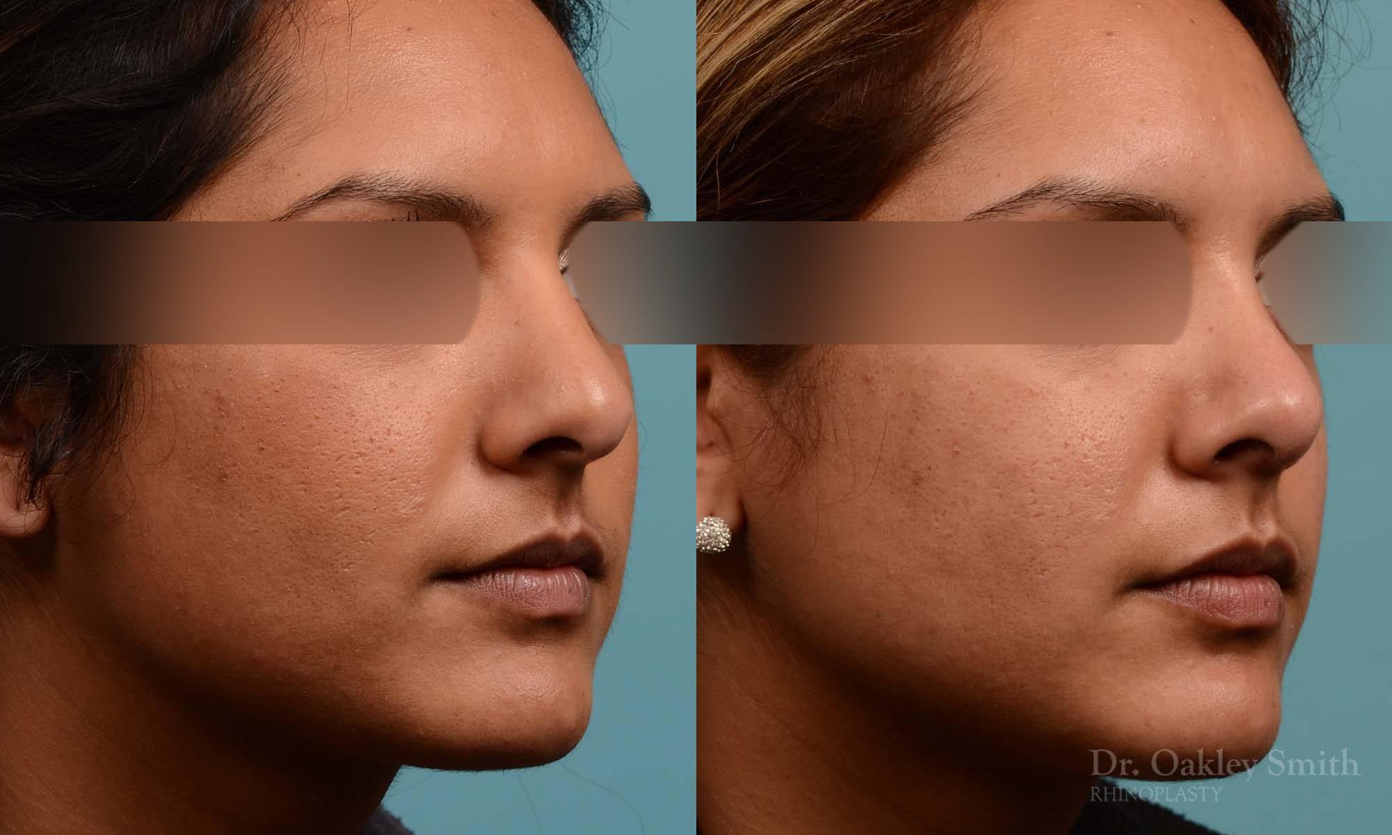 Rhinoplasty nose surgery