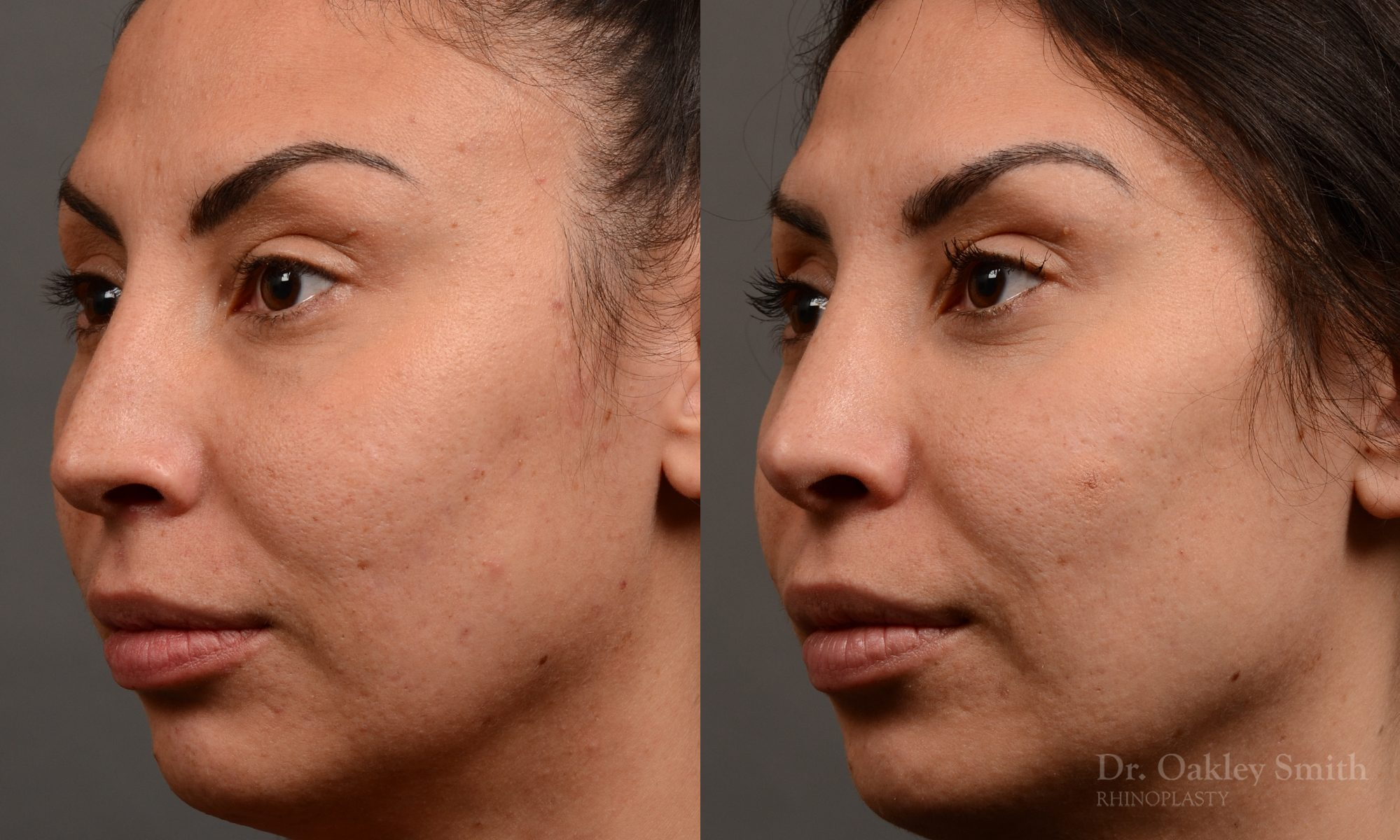 Female rhinoplasty nose surgery to create a more curved nose