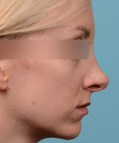 Female bridge rhinoplasty