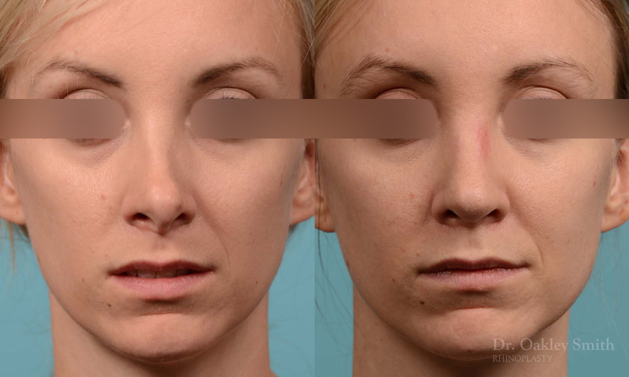 Rhinoplasty - Rhinoplasty Before and After Case 280