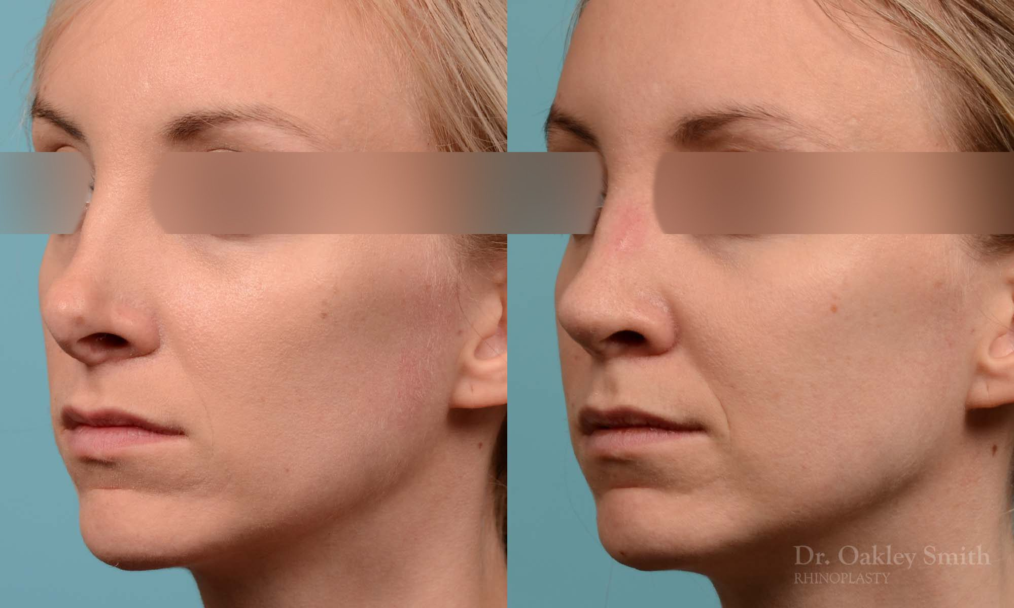 Female bridge rhinoplasty