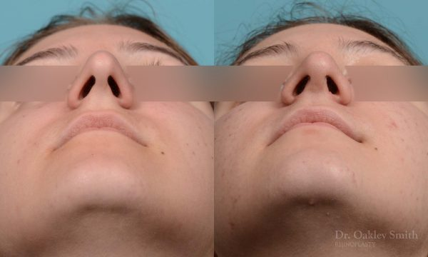 female rhinoplasty surgery