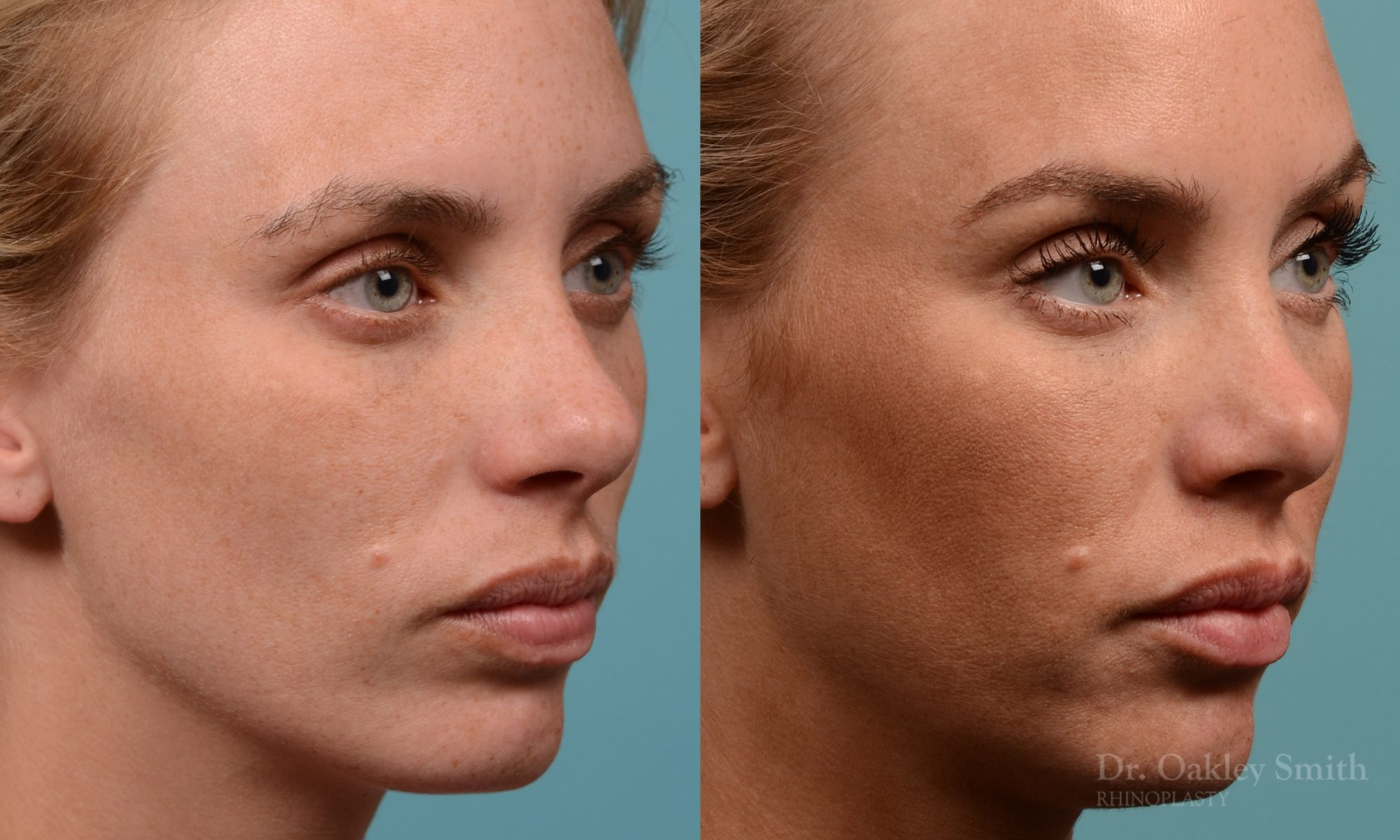 Female rhinoplasty, breathing