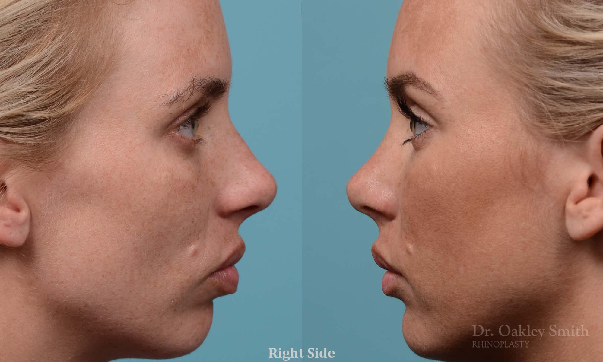 Female rhinoplasty, breathing