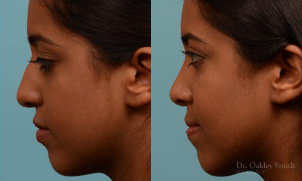 Younge female rhinoplasty.