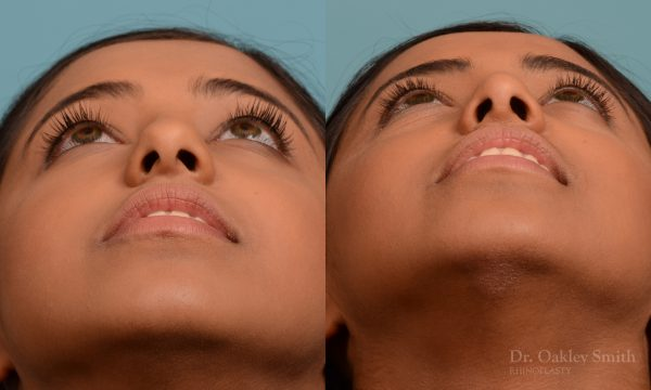 Younge female rhinoplasty.