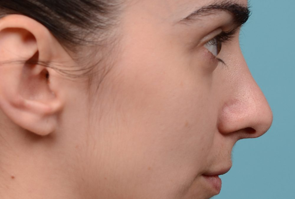 Rhinoplasty Before and After Case 288