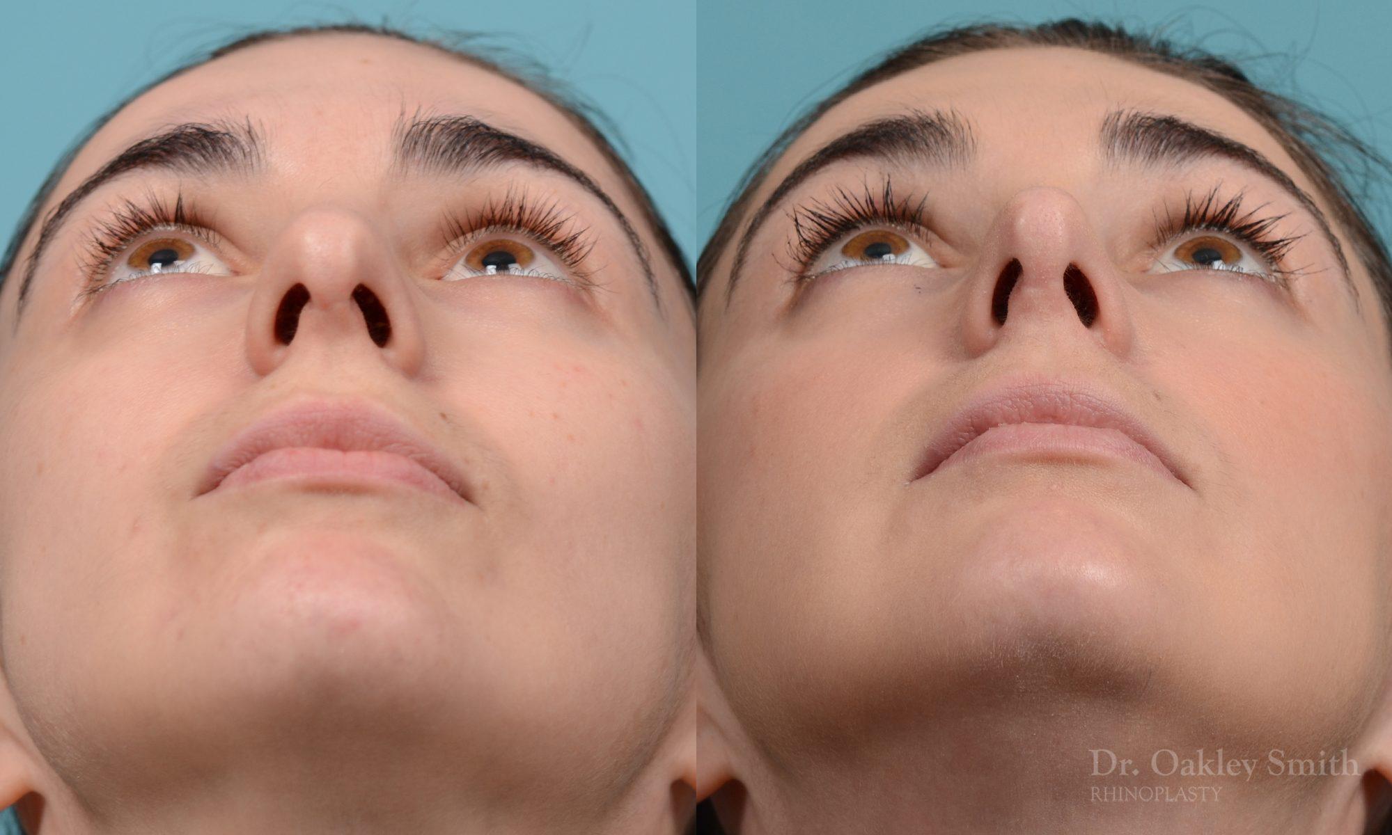 Revision rhinoplasty
