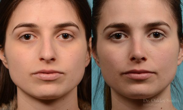 Severe rhinoplasty with hump reduction
