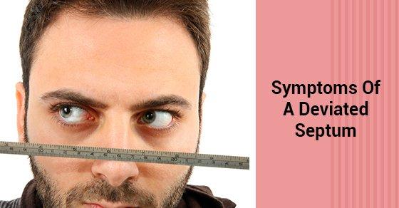 Symptoms Of A Deviated Septum