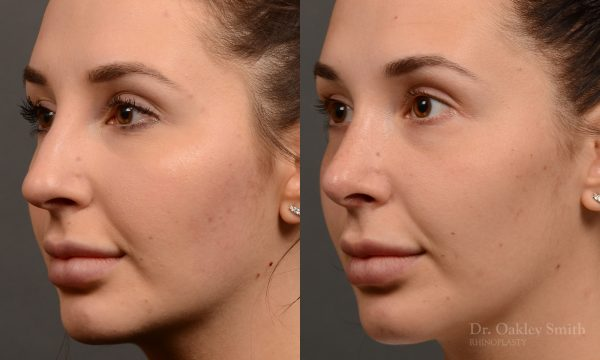 Nose job to create a smoother nose!