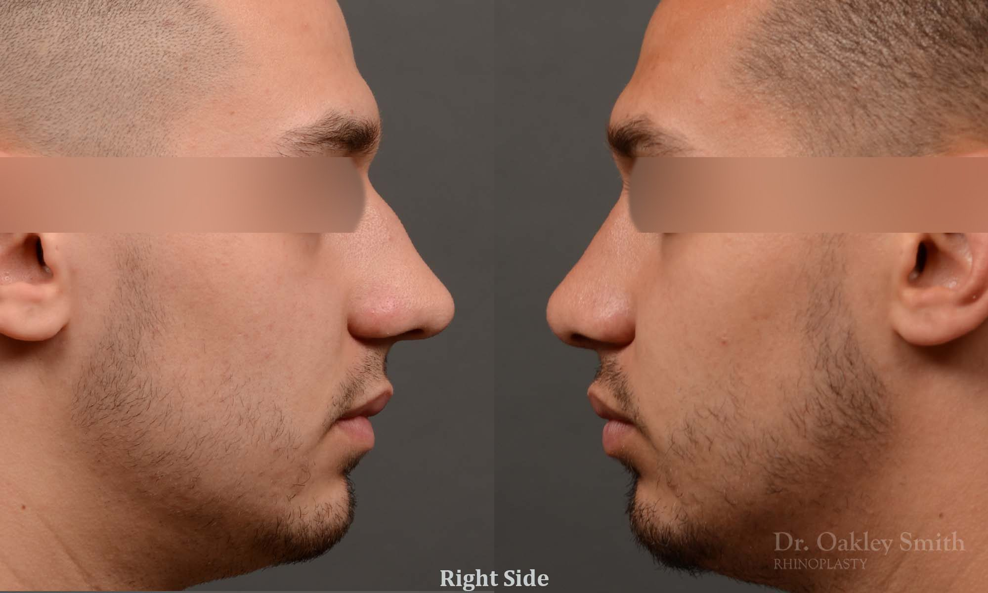 Male rhinoplasty bump on nose