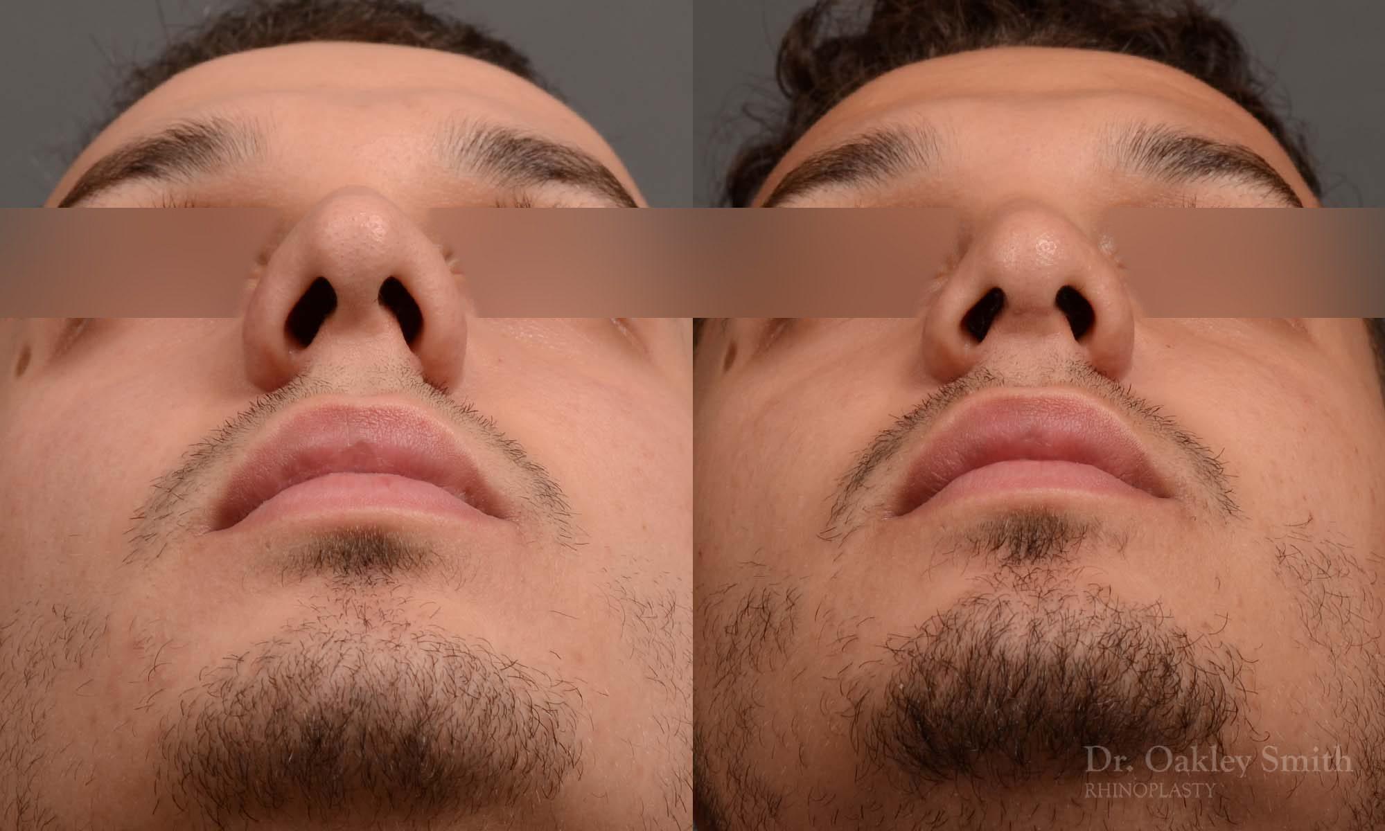 Male rhinoplasty bump on nose