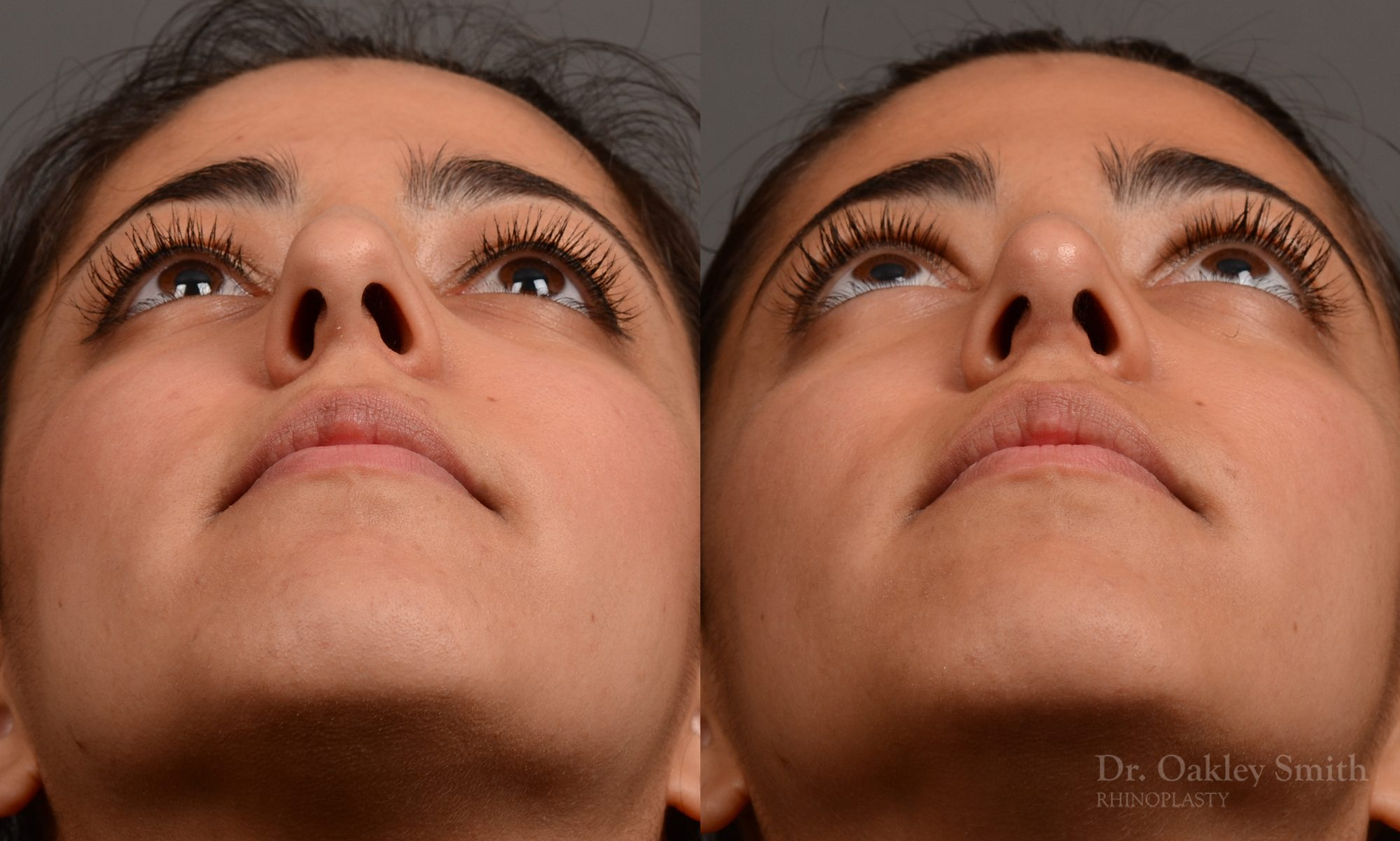 Female rhinoplasty surgery