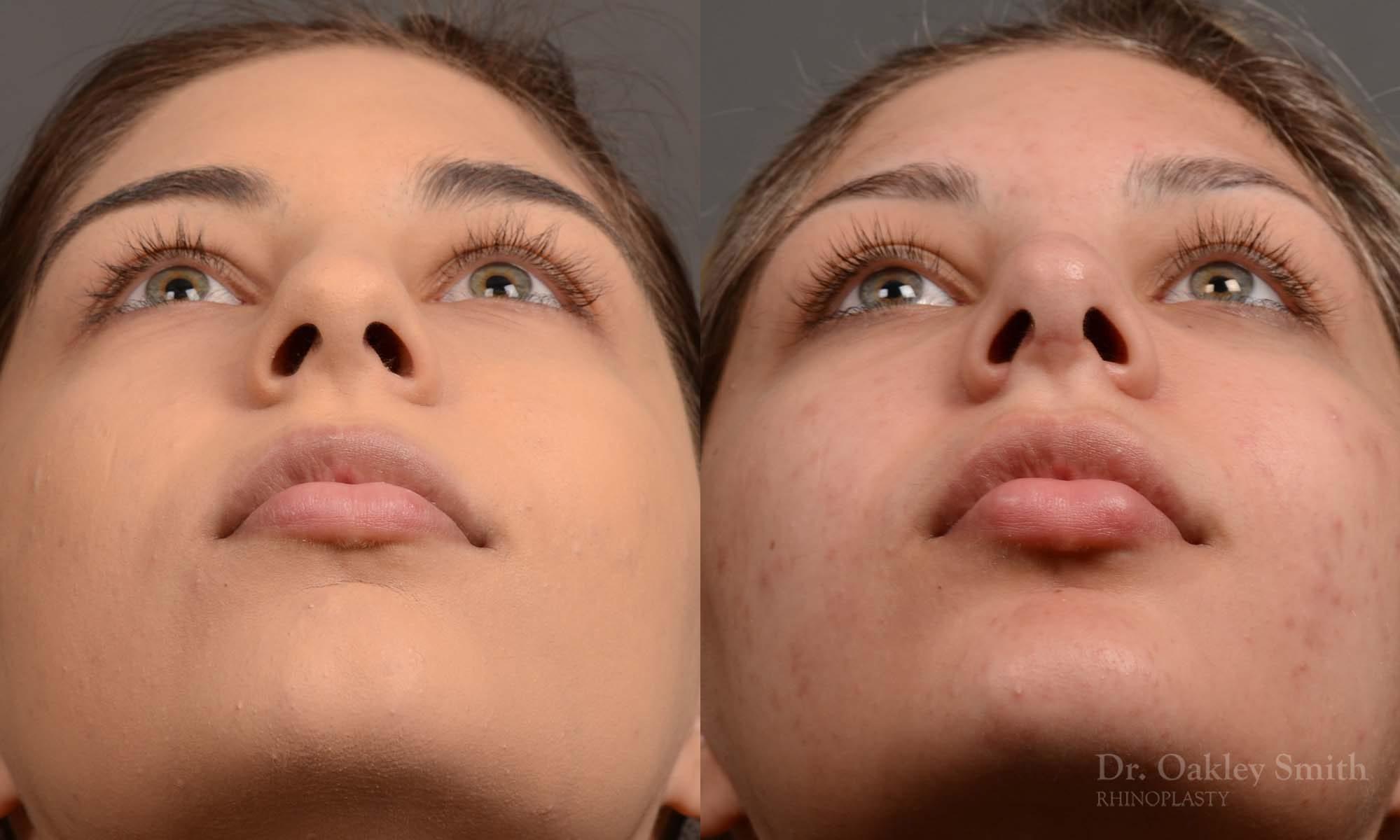 Rhinoplasty Feminine nose