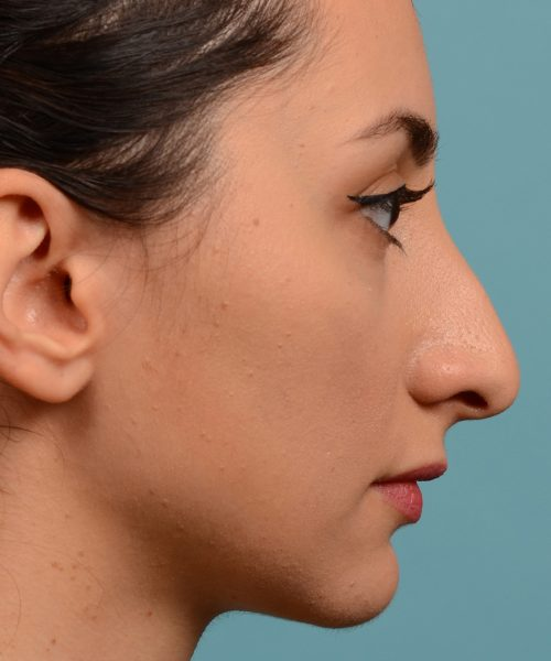 Rhinoplasty nose job female nose rhino reduction