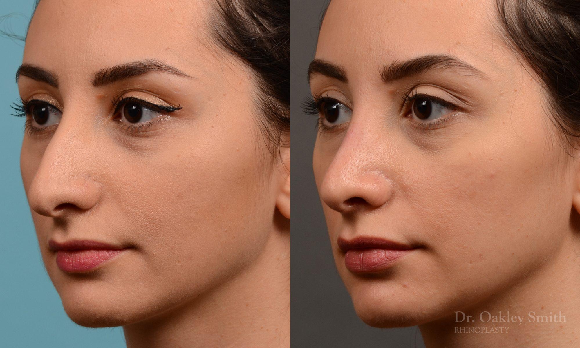 Rhinoplasty nose job female nose rhino reduction