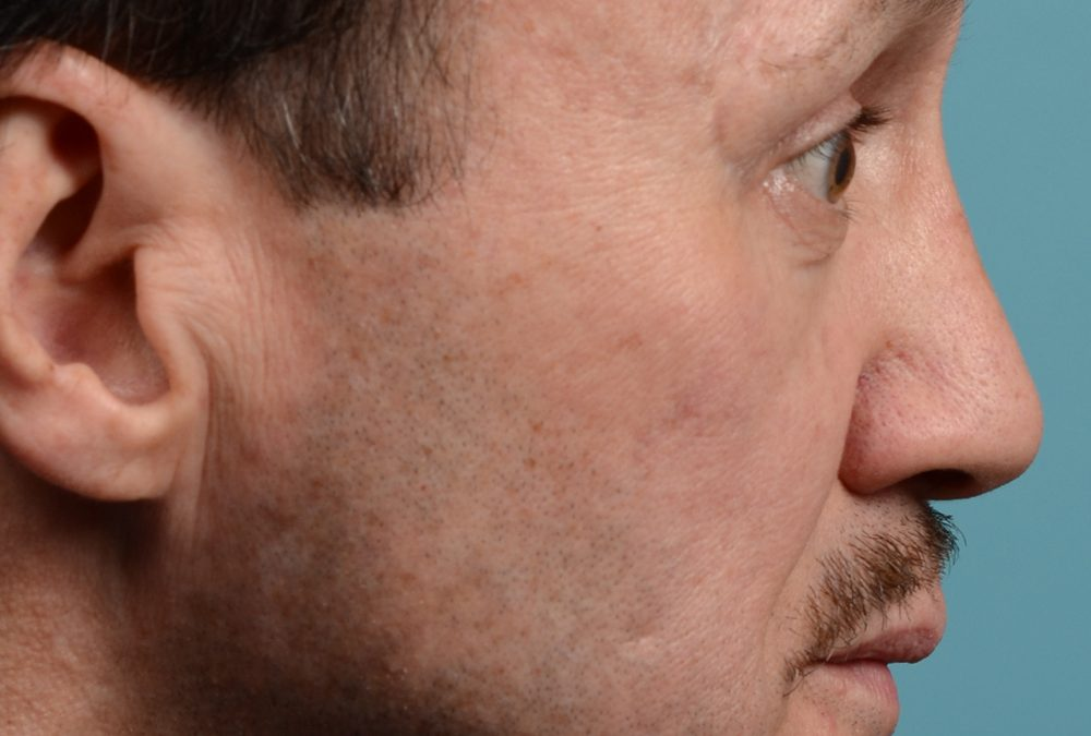 OHIP Rhinoplasty Before and After Case 300