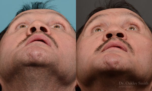 OHIP rhinoplasty for functional breathing