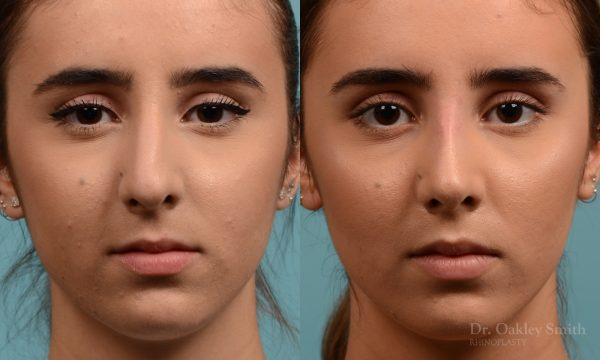 Female nose hump reduction rhinoplasty