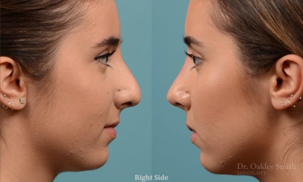 Female nose hump reduction rhinoplasty