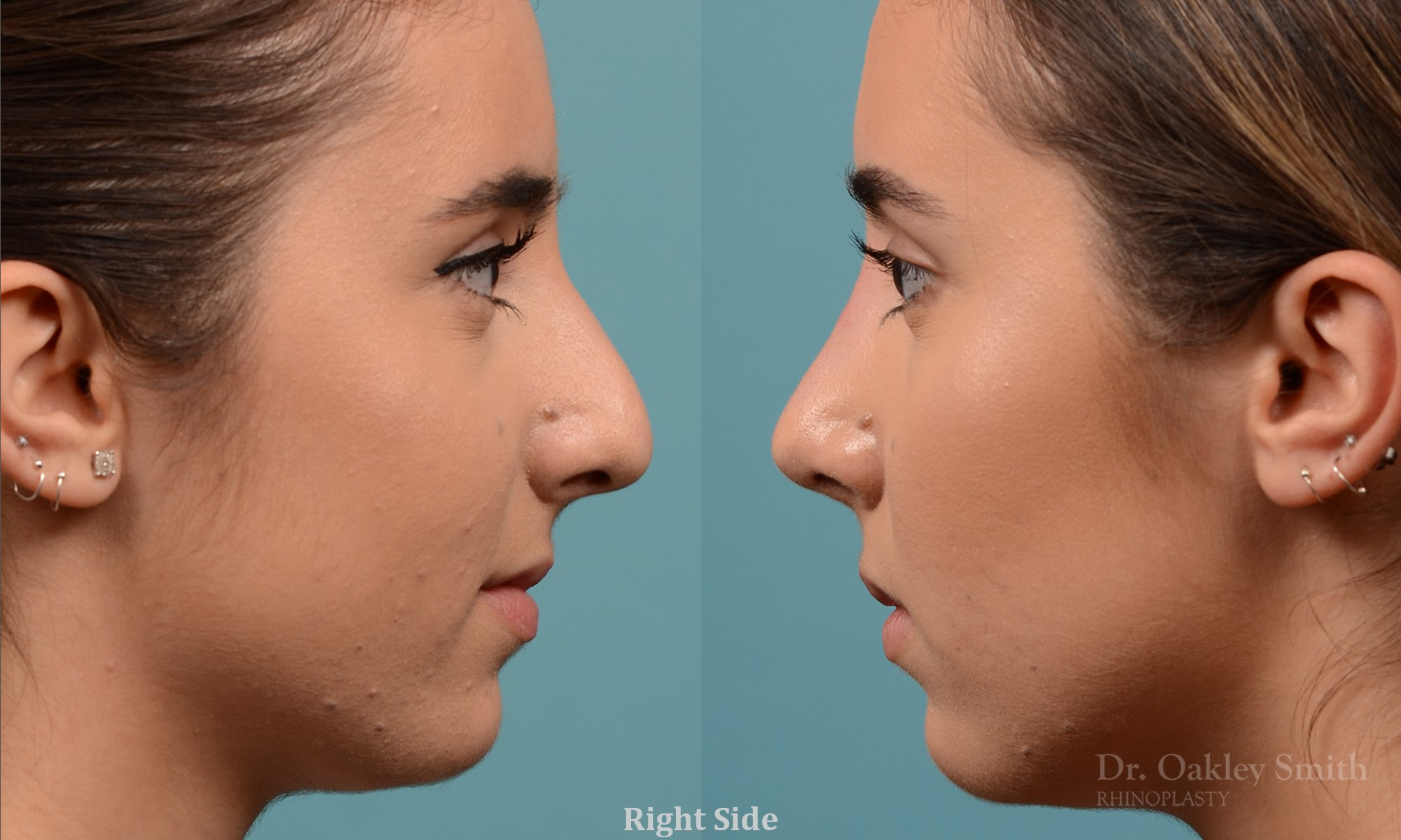 Nose surgery toronto cost - Work out world mashpee ma